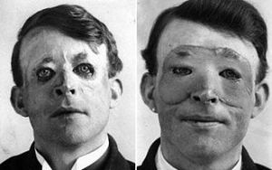 Before-and-after pictures of Walter Yeo, British sailor wounded at Jutland, 1917. He is said to be the first patient to receive reconstructive facial surgery. (Courtesy Wikimedia Commons)