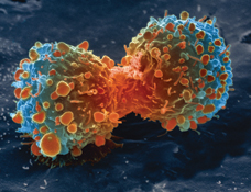 Lung cancer cell dividing , 2010 (Courtesy National Institutes of Health http://www.nih.gov/about/discovery/chronicdiseases/cancer.htm, via Wikimedia Commons)
